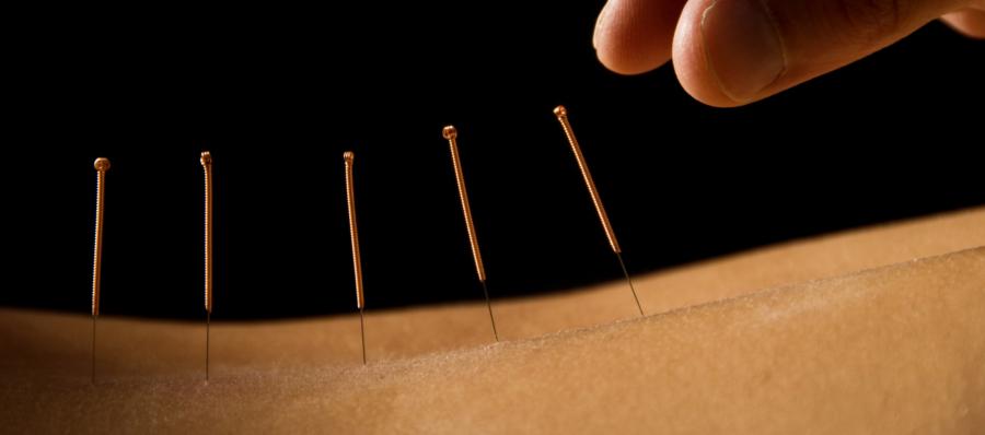 Lær om akupunktur